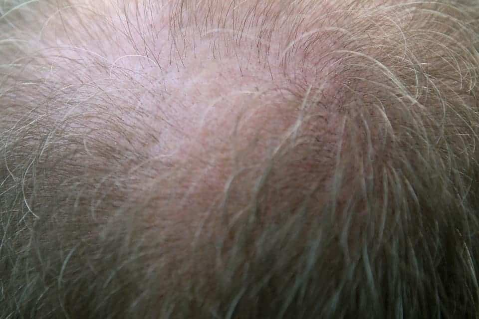 how to hide a bald spot on crown 3